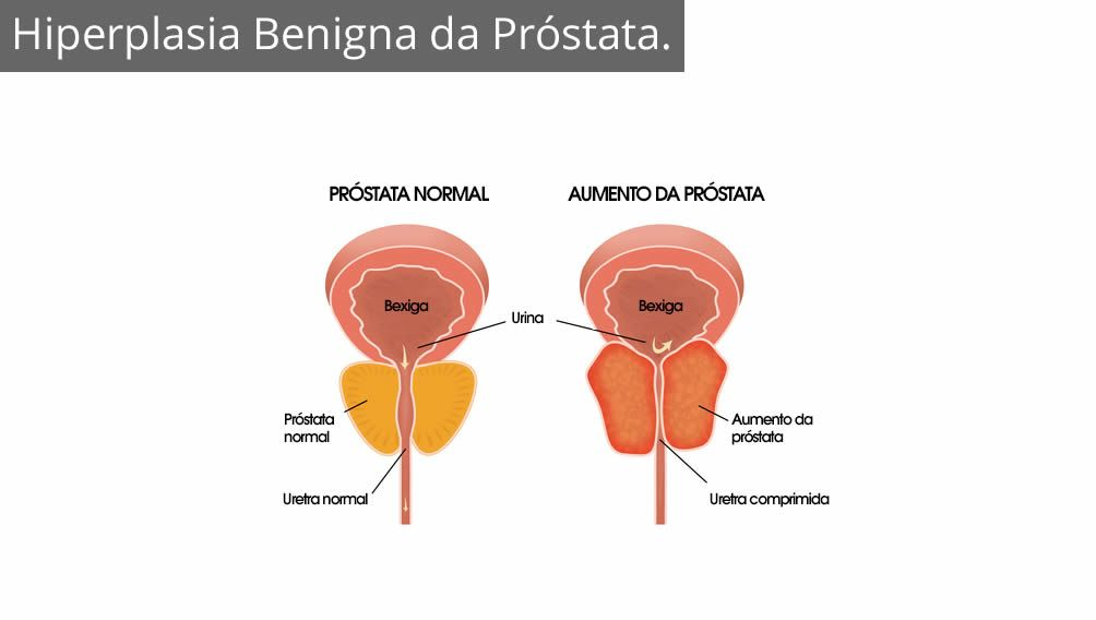 aumento de próstata